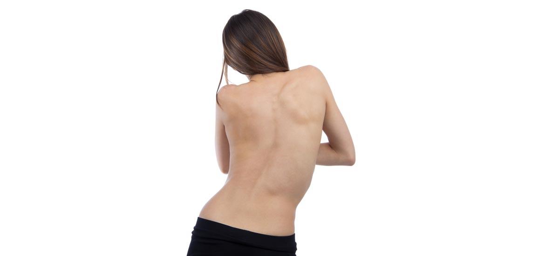 Scoliosi: prevenzione e benessere